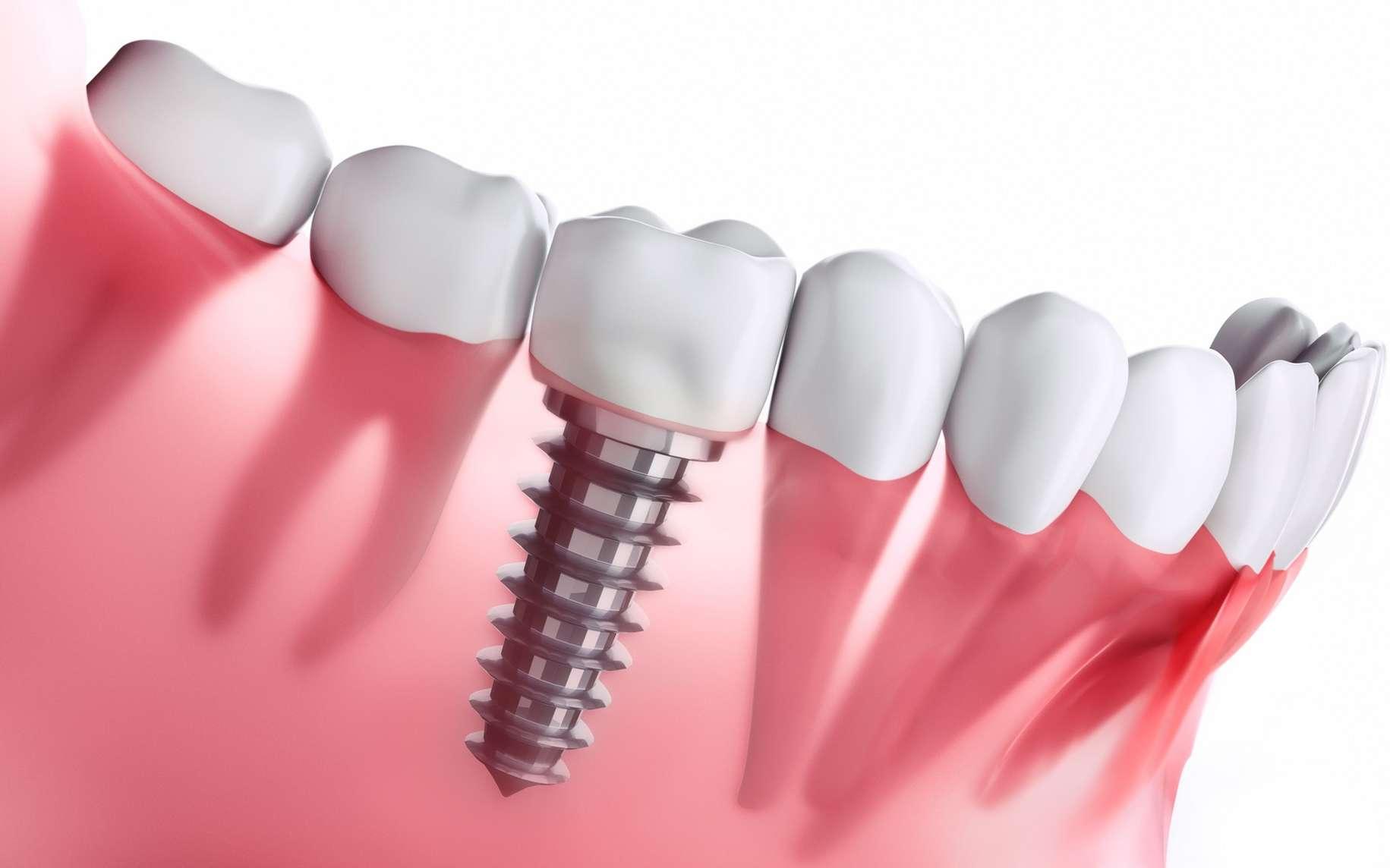 Implant dentaire : Quel est le protocole pour l'implant ?